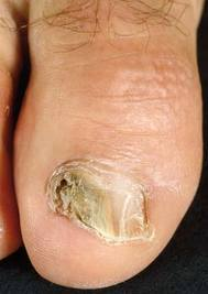 Nail-Fungus-Infection1